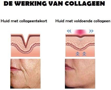 collageen huid